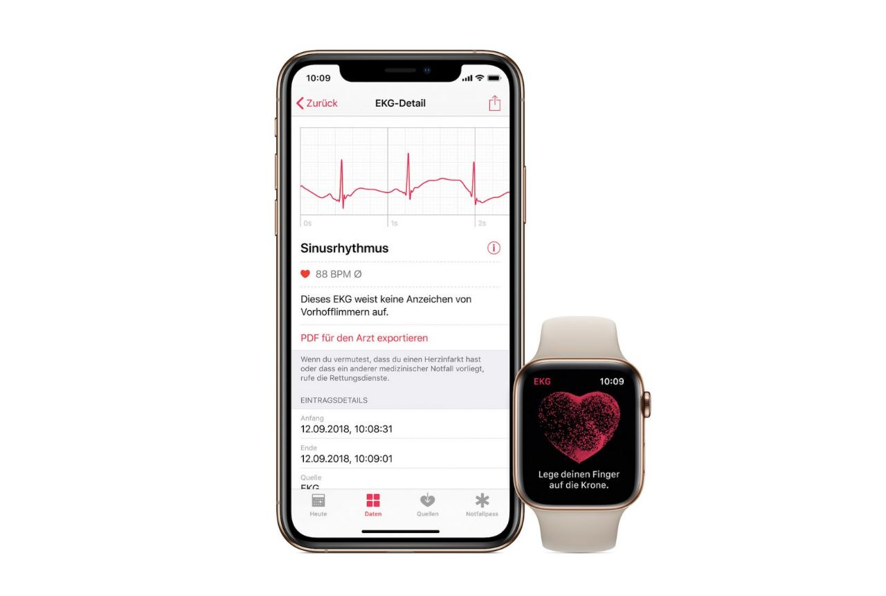 Apple Watch Series 4 EKG Messung Smartwatch_1